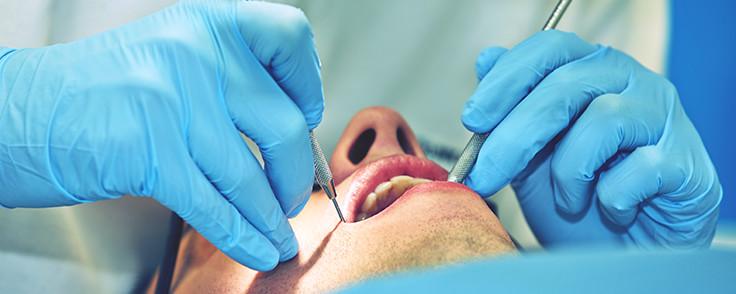 Protesi dentarie difettose